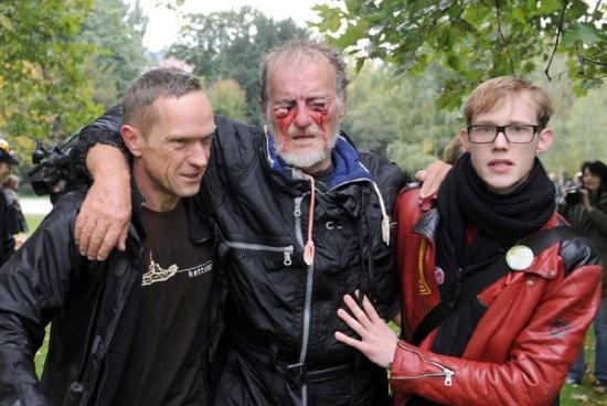 Stuttgart 21: Verletzungen durch Wasserwerferstrahl direkt ins Gesicht