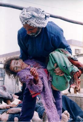 Fisk Iraq bloodied child