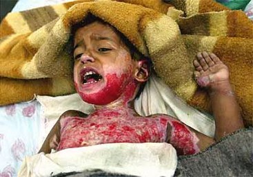 Fisk Iraq burned child