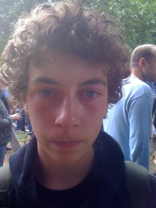 Stuttgart21: Jugendlicher mit Pfefferspray verletzt