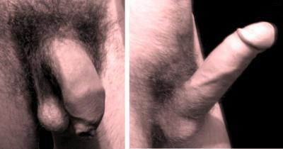 Wikipedia: Penis, normal und eregiert
