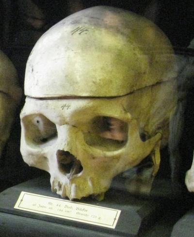 GallscherSchaedel_044_Baden-Rollettmuseum