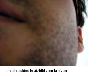 kritze