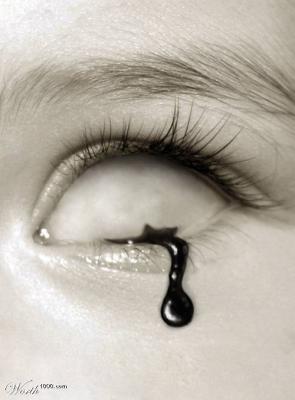 eye drop. worth1000.com