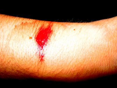 if-it-bleeds