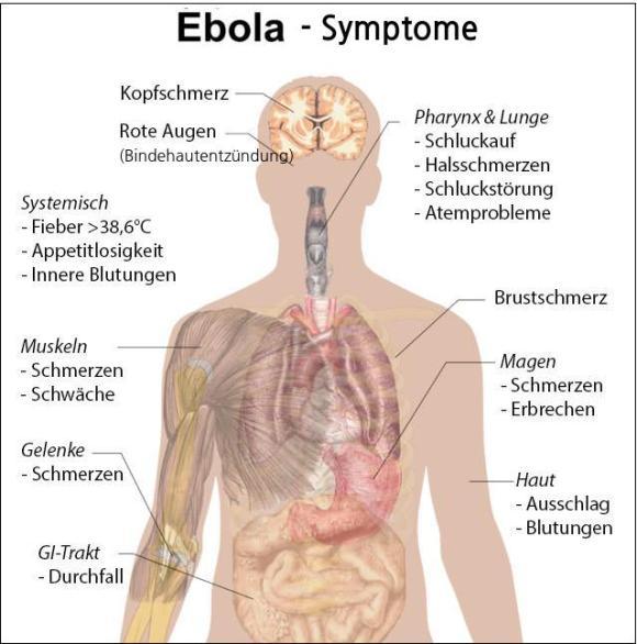 ebola-symptome